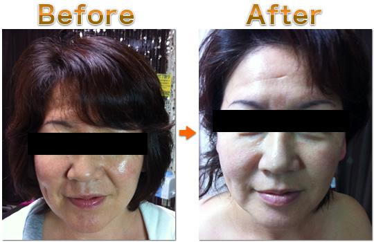 アンチエイジング 5Daysを受けた女性の施術前・施術後写真