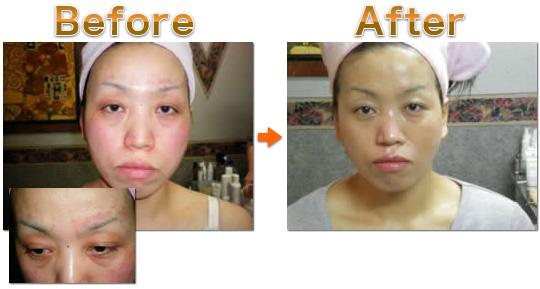 アトピー、毛細血管拡張 5Daysを受けた女性の施術前・施術後写真