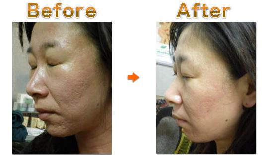 クレーター 5Daysを受けた女性の施術前・施術後写真