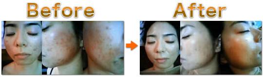 長年のニキビ跡の色素沈着 5Daysを受けた女性の施術前・施術後写真
