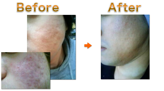 ニキビ肌 ソフト1Dayを受けた女性の施術前・施術後写真